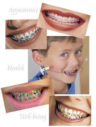 Dental Plan For The Entire Household